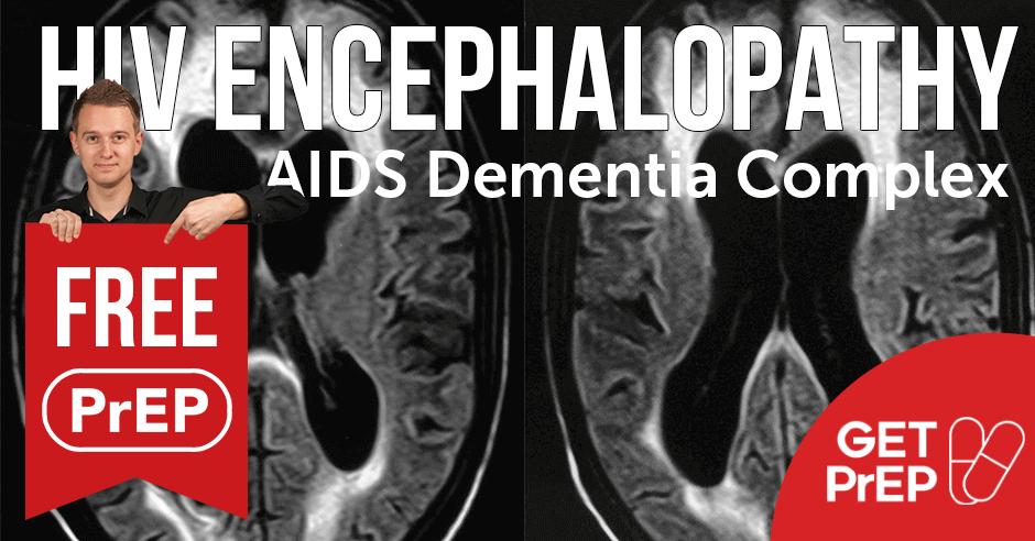 HIV encephalopathy (AIDS Dementia Complex)